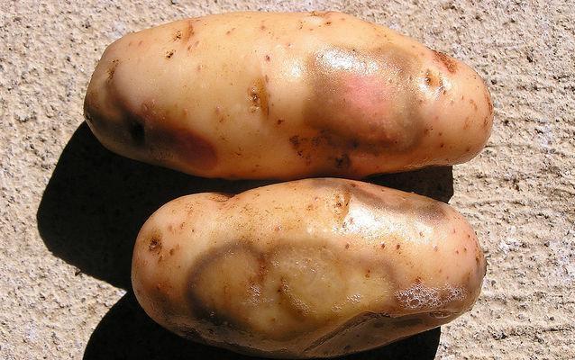 Vene varicoase metode de tratare a cartofului